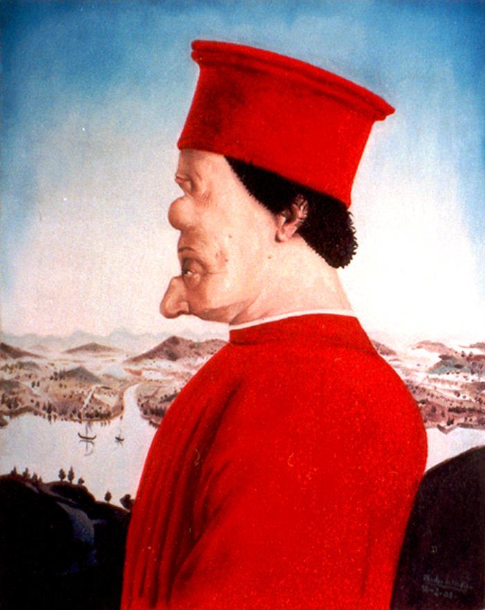 El Conde de Montefeltro después de una operación de cirugía estética